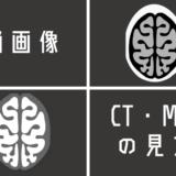 脳画像におけるCT・MRIの見方!!みるべきポイントさえ押さえれば、脳画像は簡単に見れる!!