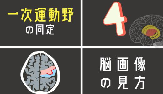 脳画像から一次運動野を探す方法とは?運動麻痺の評価の最初の一歩!