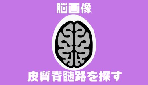 皮質脊髄路(錐体路)を脳画像から簡単に見つける方法!運動麻痺を理解する5つの見るべきポイントとは?