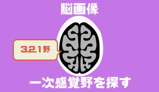 感覚障害に関わる体性感覚野ってどこにあるの?一次体性感覚野(3,1,2野)の同定方法!!