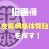 姿勢制御の評価必見!脳画像における皮質網様体脊髄路の見つけ方!