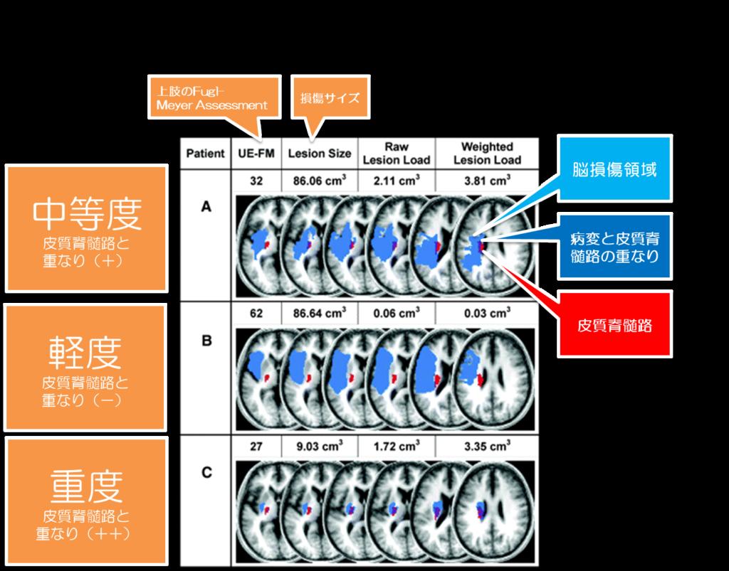 皮質 脊髄 路