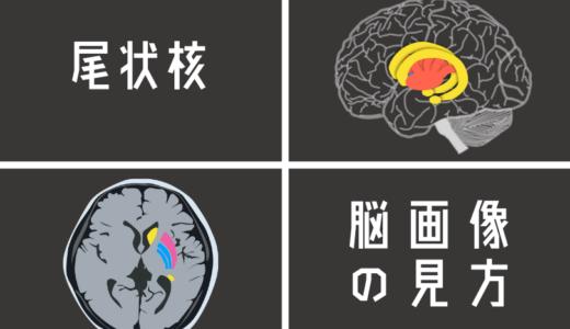 尾状核を脳画像から見つける方法