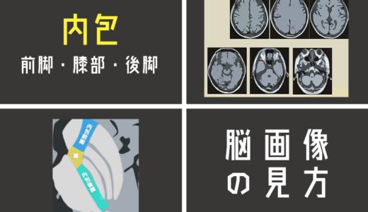内包を脳画像から簡単に見つける方法