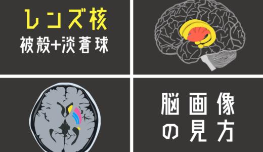レンズ核(被殻+淡蒼球)を脳画像から簡単に見つける方法