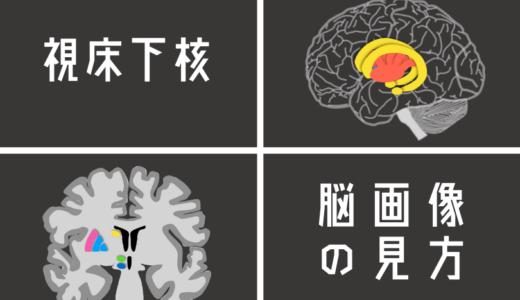 視床下核を脳画像から見つける方法