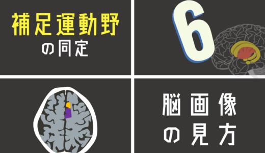 姿勢制御や運動プログラムに関わる補足運動野を脳画像から探す方法とは?
