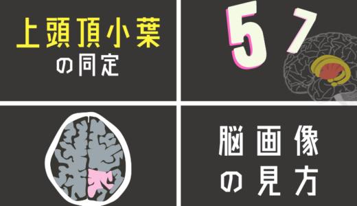 上頭頂小葉(5野・7野 )を脳画像から探す方法とは?