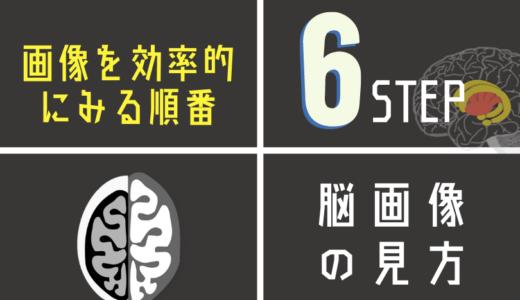 脳画像を効率的にみる6STEP!「脳画像はどれからみる?」の最適解を徹底解説!